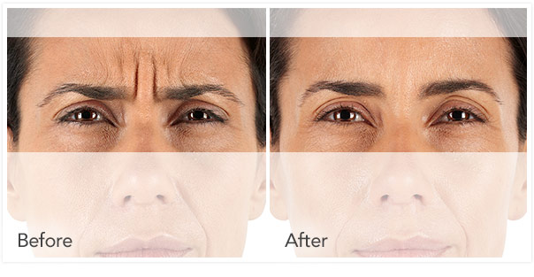 Xeomin Before/After